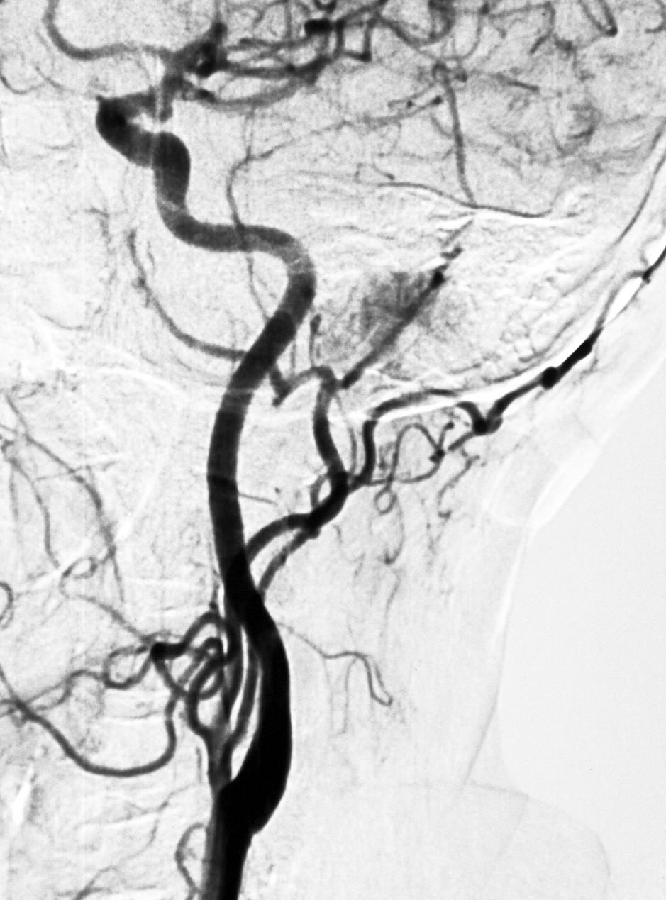Angiografia zobrazuje tumor, ktorý sa vysycuje po podaní kontrastnej látky.