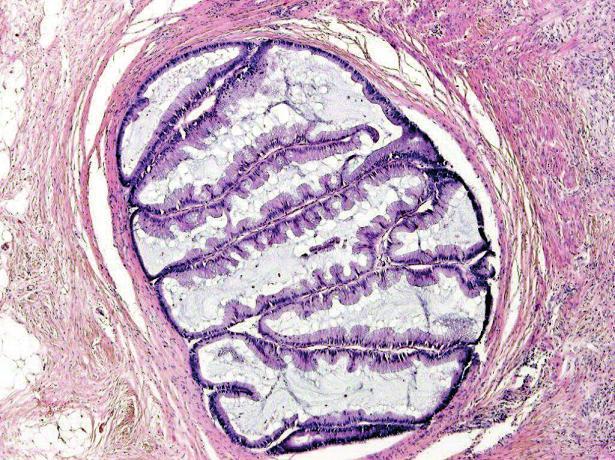 Serrated karcinom invazivně rostoucí do muscularis propria (HE, objektiv x20).
