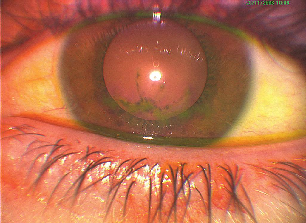 Nález keratitídy na ľavom oku pri prvom vyšetrení