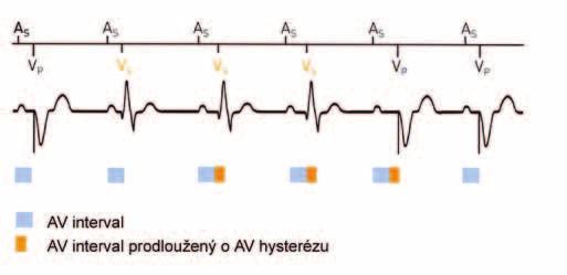 AV-hystereze. Prodloužení AV-intervalu při detekci spontánního síňokomorového vedení je následně vzhledem k uplatnění komorové stimulace opět zkráceno na původní programovanou hodnotu. (zdroj: Biotronik Philos II. Výukový materiál)