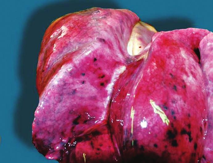 Paltaufovy skvrny pod poplicnicí pravé plíce při aspiračním typu utonutí.