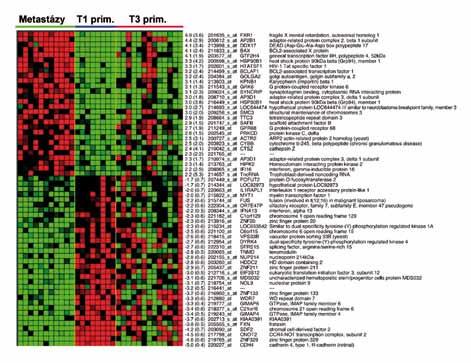 Část 155genového metastatického profilu cRCC , vytvořeného na základě srovnání expresních profilů vzdálených metastáz cRCC a primárních tumorů o rozsahu T1 (dle TNM klasifikace). Tento profil následně aplikovaný na cRCC o rozsahu T3 rozdělil T3 tumory na dvě skupiny. Skupina T3 tumorů, která měla profil genové exprese 155 genů podobný profilu vzdálených metastáz, měla v době chirurgického výkonu vzdálené metastázy skutečně přítomny. U pacientů s T3 tumory s profilem genové exprese podobným T1 tumorům v době chirurgického výkonu vzdálené metastázy přitomny nebyly.