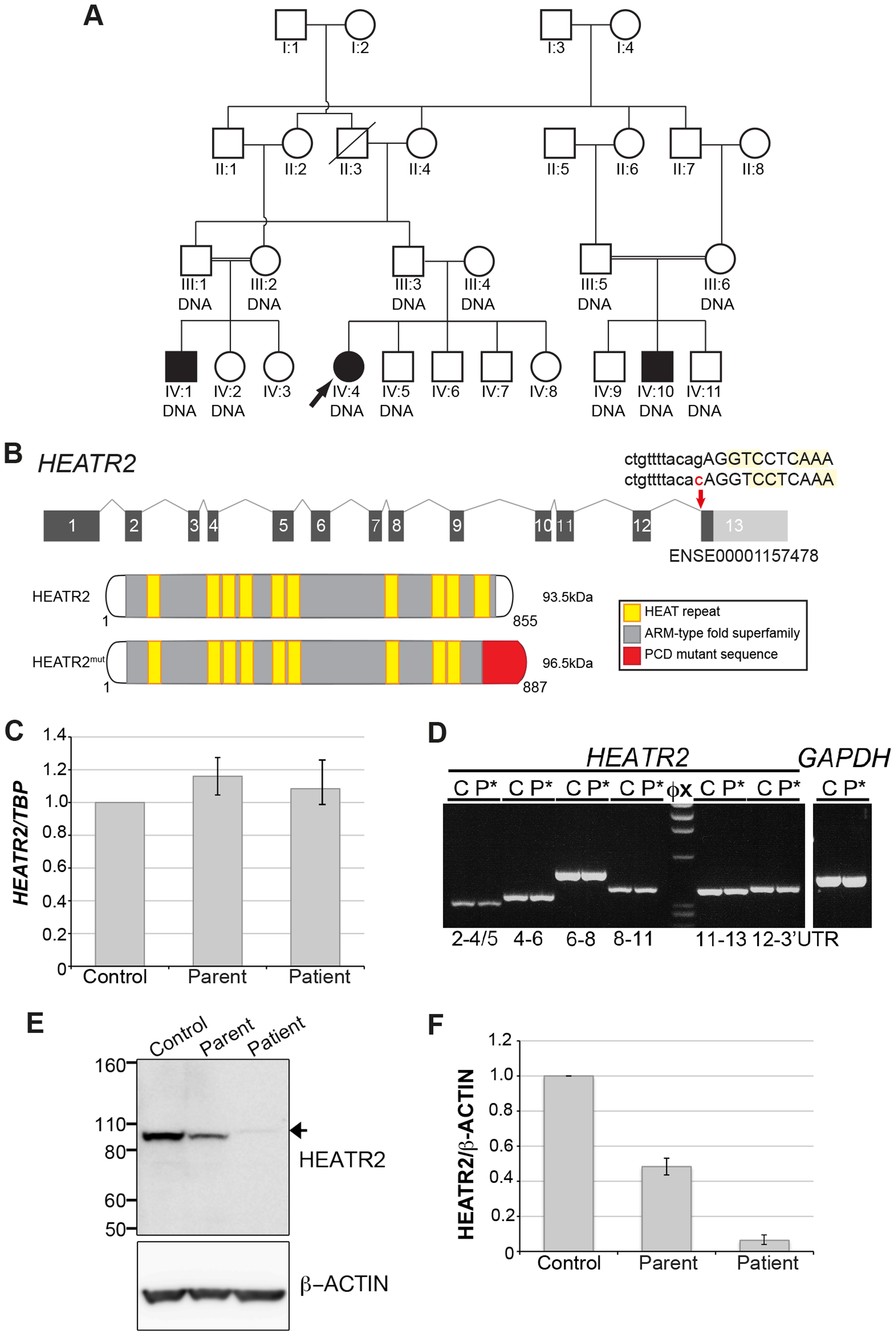 <i>HEATR2</i> splice mutation results in alteration of the final conserved HEAT repeat and protein instability.
