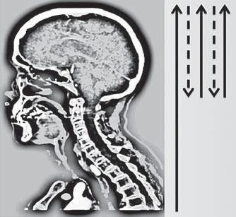 Schéma průběhu skenování pomocí multifázické CT angiografi e (Calgary Stroke Program protokol). Fig. 1. Diagram of scanning using multiphase CT angiography (Calgary Stroke Program protocol).