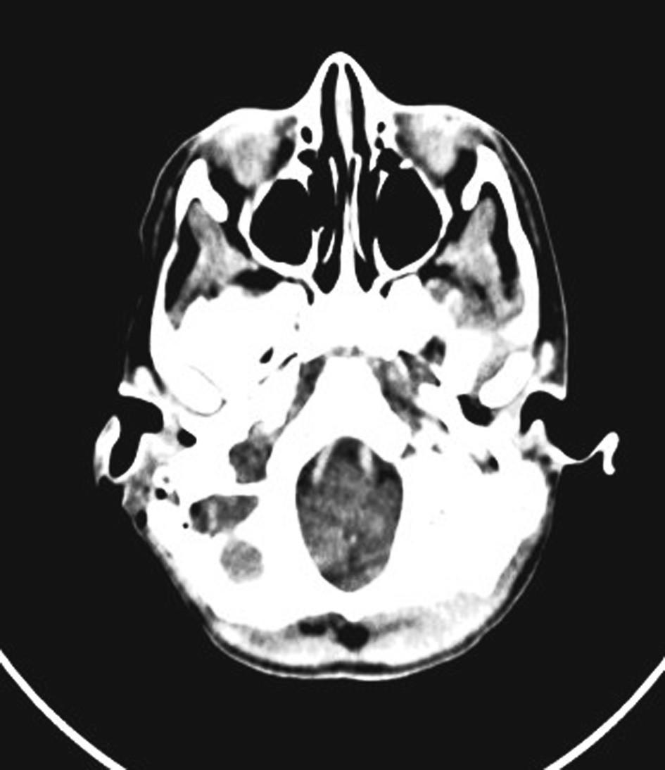 Trombus v sifonu sinus sigmoideus.