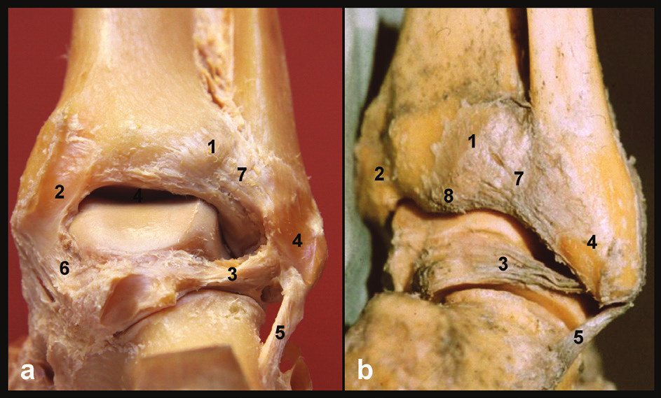 Anatomie zadní hrany tibie, pravé hlezno a – pohled zezadu, b – pohled posterolaterální, 1 – tuberculum posterius tibiae, 2 – sulcus tendinis m. tibialis posterior, 3 – lig. talofibulare posterius, 4 – sulcus malleoli lateralis, 5 – lig. fibulocalcaneare, 6 – tibio-talární část deltového vazu, 7 – lig. tibiofibulare posterius, 8 – zadní malleolus. Převzato z [11]. Fig. 1: Anatomy of posterior tibial rim, right ankle a – posterior view, b –posterolateral view, 1 – tuberculum posterius tibiae, 2 – sulcus tendinis m. tibialis posterior, 3 – lig. tibiofibulare posterius, 4 – sulcus malleoli lateralis, 5 – lig. fibulocalcaneare, 6 – tibio-talar part of deltoid ligament, 7 – lig. tibiofibulare posterius, 8 – malleolus posterior. Courtesy of [11].