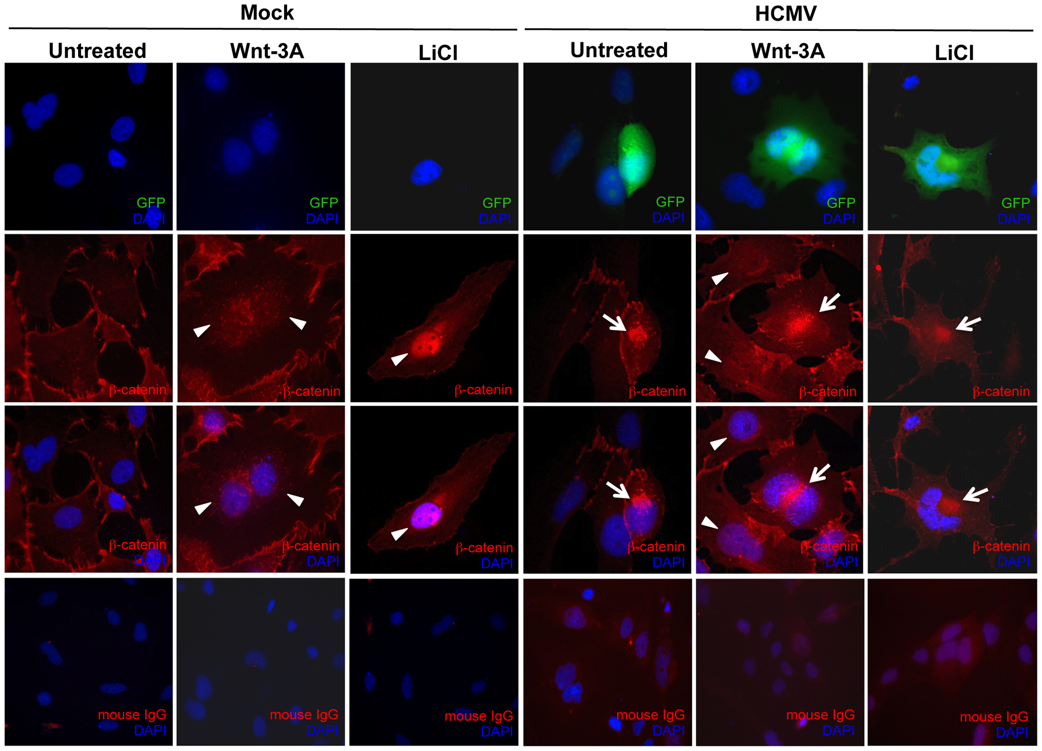 HCMV infection inhibits β-catenin nuclear translocation in EVTs.