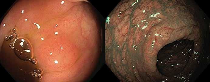 Infiltrace sliznice tlustého střeva malobuněčným lymfomem napodobující hyperplastický polyp v bílém světle (vlevo) a s využitím narrow band imaging (vpravo). Fig. 2. Infiltration of colonic mucosa by small cell lymphoma mimicking a hyperplastic polyp in white light (left) and narrow band imaging (right).