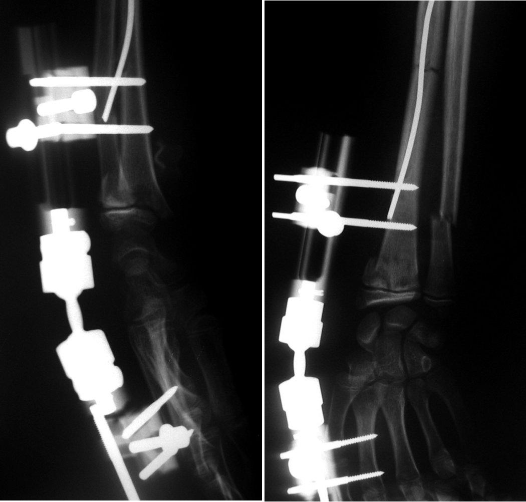 Obr. 5f. a Obr. 5g. Diafyzální zlomenina radia ošetřena nitrodřeňovou osteosyntézou ESIN jedním Prévotovým hřebem a otevřená separace distální epifýzy radia stabilizována zevním fixátorem Orthofix – Pennig. Obě osteosyntézy provedeny zavřeně, miniinvazivně