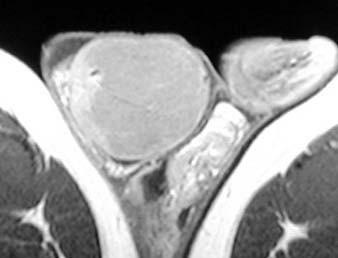 Seminom varlete: pravé varle zvětšené uzlovitou nádorovou hmotou, hypointenzní v T1 MR-obraze.
