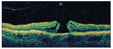 OCT znázorňuje dieru makuly v plnej hrúbke a cystoidným zhrubnutím jej okrajov a podobne ako na predchádzajúcom obrázku zadnú kôru sklovca