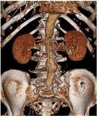 3D CT rekonstrukce obrazu aneuryzmatu břišní aorty s max. průměrem 49 mm.