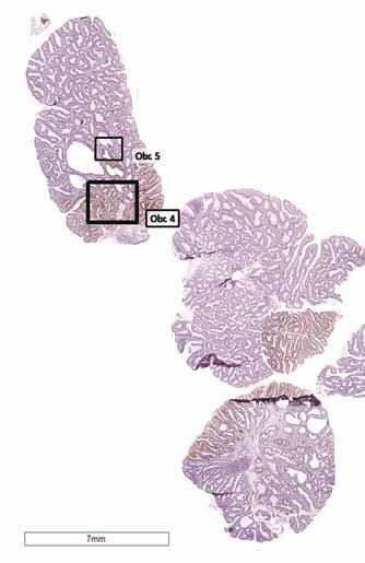 Nádorové klony nesoucí mutaci se stabilizací proteinu p53 (barvení monoklonální protilátkou).