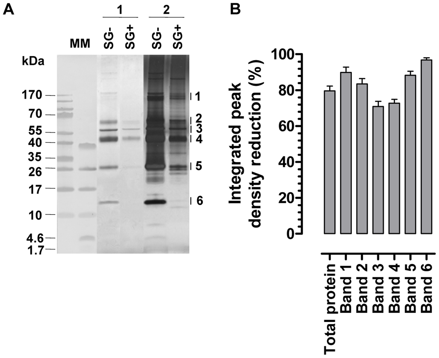 Effects of the <i>T. brucei</i> salivary gland infection on the tsetse fly salivary protein composition.