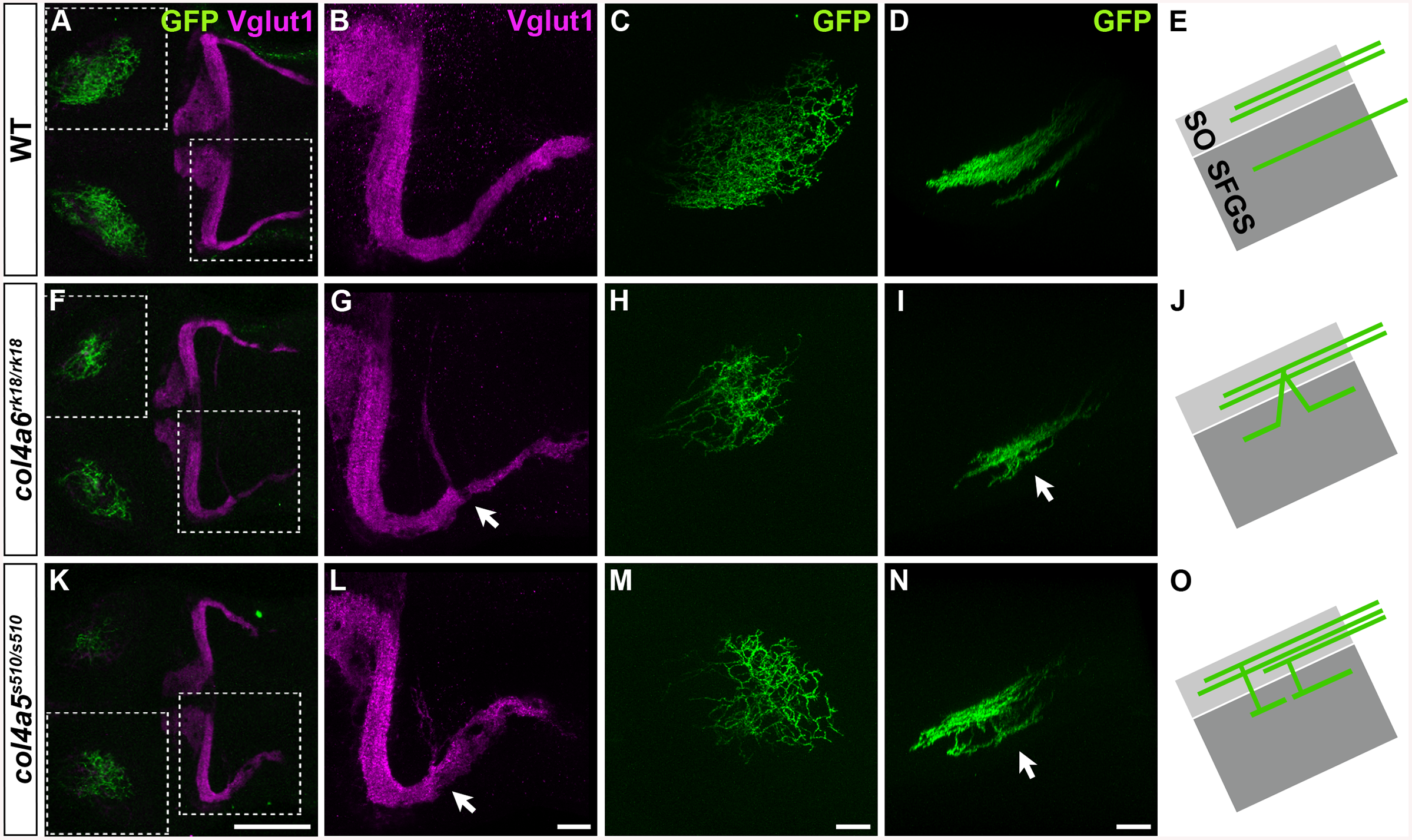 The Col4a5 and Col4a6 complex plays a role in the axogenesis of GCs and RGCs.