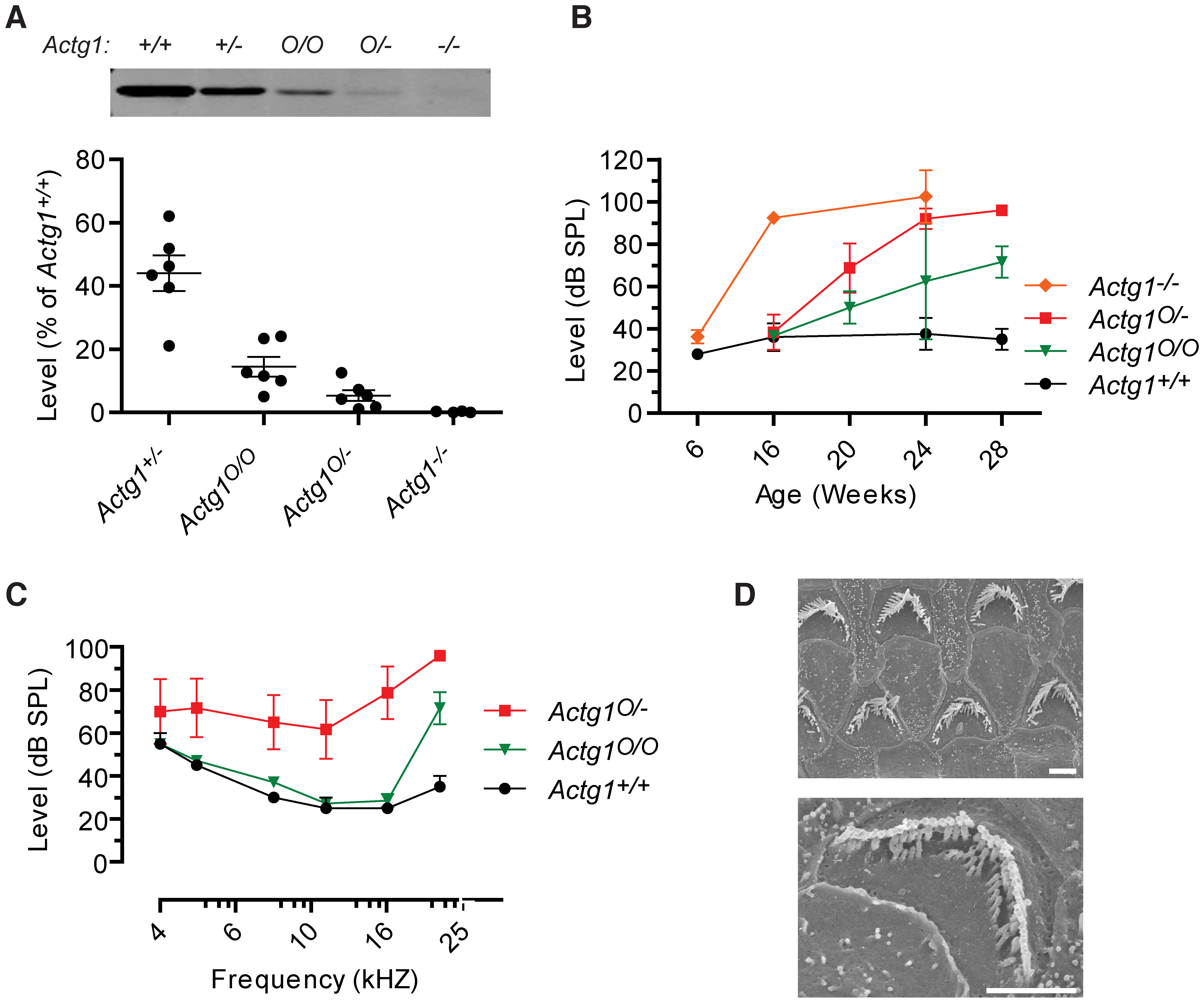 Onset and progression of hearing loss depends on γ-actin concentration.