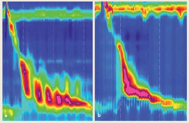 a) Hyperkontraktilita s repetitívnymi kontrakciami s DCI > 8 000 mmHg/cm/s, typická pre Jackhammer pažerák, b) tzv. hypertenzná kontrakcia podľa klasifikácie z r. 2012. Jej signifikancia je nízka a vo v3.0 je klasifikovaná ako normálna. Fig 2. a) Hypercontractility with repetitive contractions with DCI > 8,000 mmHg/cm/s typical for Jackhammer esophagus, b) hypertensive peristalsis according to the Chicago classification criteria 2012. Low signifi cance, classified as normal according to the v3.0.