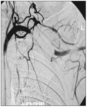 Uzávěr v. subclavia při elevované končetině u pacienta s TOS Fig. 1. Closure of v. subclavia in an elevated extremity in a patient with TOS