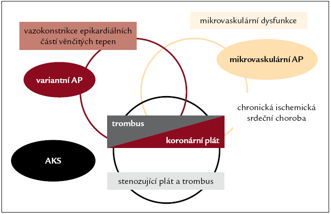Patofyziologické mechanizmy a klinická prezentace různých forem ischemické srdeční choroby.