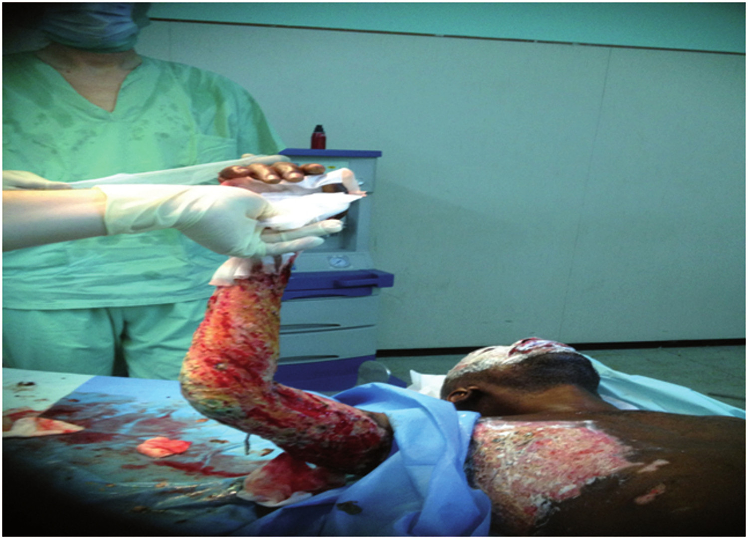 Pic. 3: Right arm after necrectomy and with prior performed fasciotomy (Photo: N. Hecker)