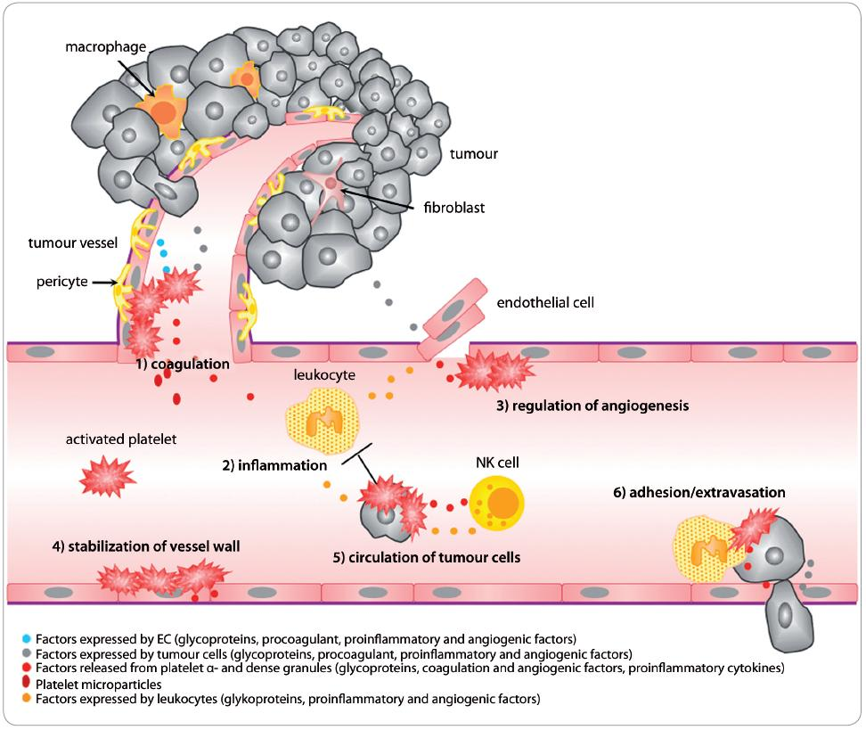 Fig. 1. Platelets contribution to the regulation of tumour angiogenesis and tumour progression. 1. Coagulation: Stimuli for platelet activation come from endothelial cells, as well as tumour stroma itself (expression of tissue factor, thrombin, ADP etc.). After activation, platelets change their shape, release PMP, α- and dense granule content and trigger coagulation cascade [8,11]. 2. Infl ammation: Chemokines (IL-8, histamine etc.) released by platelets are chemotactic for leukocytes and precursor cells from bone marrow. These cells also regulate the tumour environment by release of growth and angiogenic factors [12]. 3. Angiogenesis: Platelets participate also in regulation of angiogenesis by releasing pro- and anti-angiogenic factors (VEGF, bFGF, PF-4 etc.), as well as by active sequestering of factors from the circulation [9]. 4. Stabilisation of vessel wall: Platelets stabilise the vessel wall and maintain intercellular connections by releasing factors, such as EGF, S1P, ang-1 etc., to prevent haemorrhage at the site of angiogenesis and inflammation [17]. 5. Circulation of tumour cells: Platelets adhered to tumour cells protect them from immune recognition and the cytotoxic effects of NK cell cytokines, which enables survival in the circulation and migration to distant tissue sites [7,17,18]. 6. Adhesion/extravasation: Aggregates of platelets, leukocytes and tumour cells facilitate adhesion of tumour cells to endothelium and subsequent extravasation into distant tissues. Platelets also release factors promoting cell proliferation and increasing permeability of the vessel wall (e.g. VEGF) [6,17].