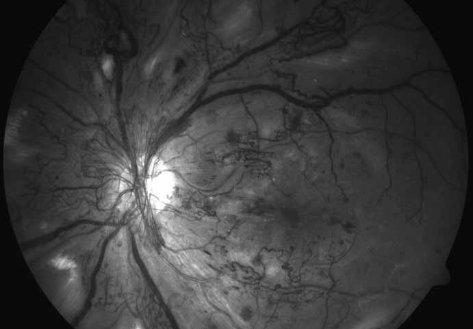 Černobílý obrázek proliferativní formy DR u 35leté diabetičky levého oka zobrazující aktivní neovaskularizace na papile zrakového nervu, šířící se do okolí, četné intraretinální mikrovaskulární abnormality v horní polovině a v zadním pólu, pokročilá flebopatie a kyprá vatovitá ložiska při kmenových sítnicových cévách. Dosud nebyla provedena laserová koagulace sítnice.
