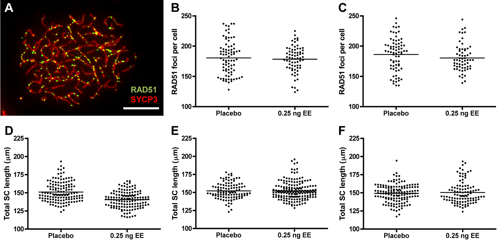 RAD51 foci counts and SC length measurements in placebo and exposed CD-1 males.