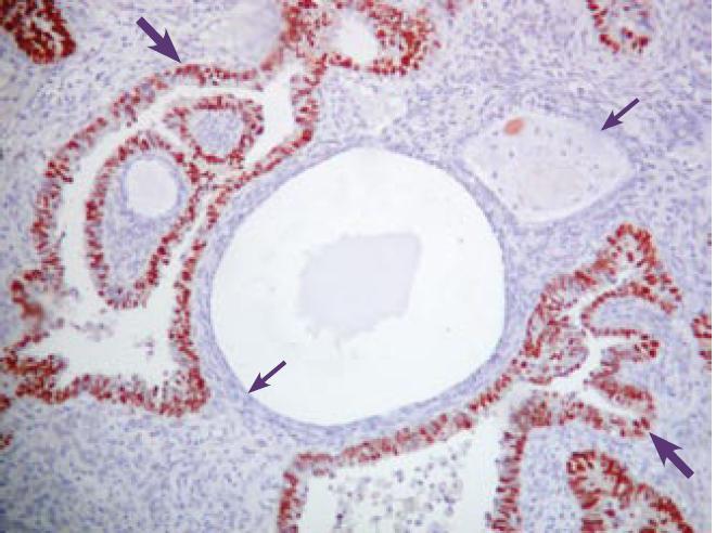 Pravidelne silne pozitívna expresia Ki-67 (červenohnedo) v SC (hrubá šípka). Neprítomnosť expresie Ki-67 v cystickom AE (v menopauze) (tenká šípka). Imunohistochemické vyšetrenie s protilátkou proti Ki–67. ABC-Px, 100×.