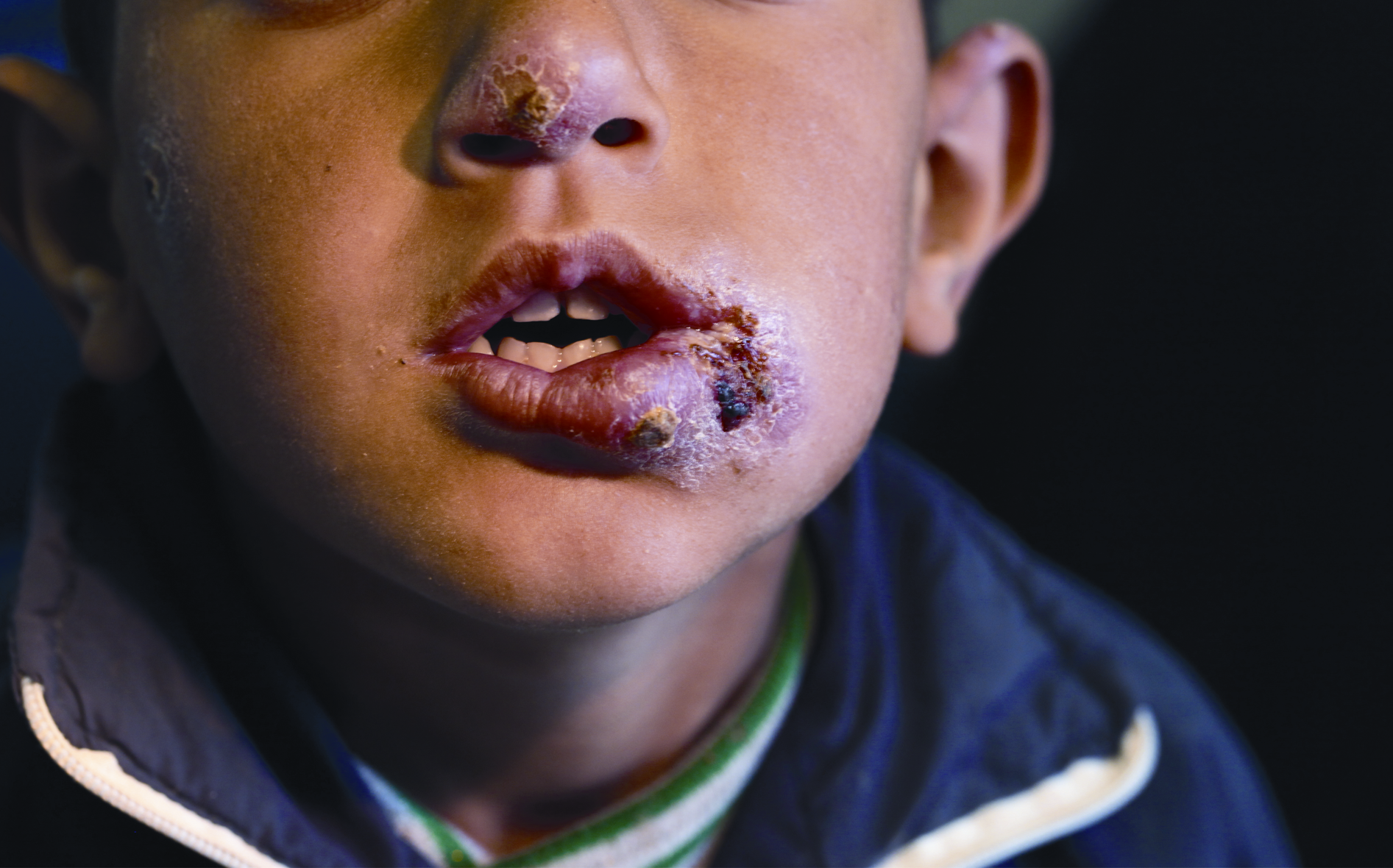 Syrian child from a Lebanon refugee camp, presenting multiple lesions from cutaneous leishmaniasis, courtesy of Dr. Ibrahim Khalifeh