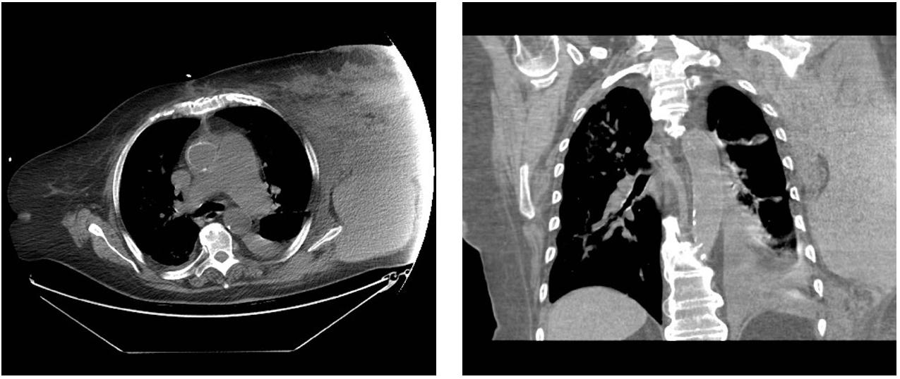 Obr. 1, 2: Rozsáhlý hematom hrudní stěny vlevo (CT nález)