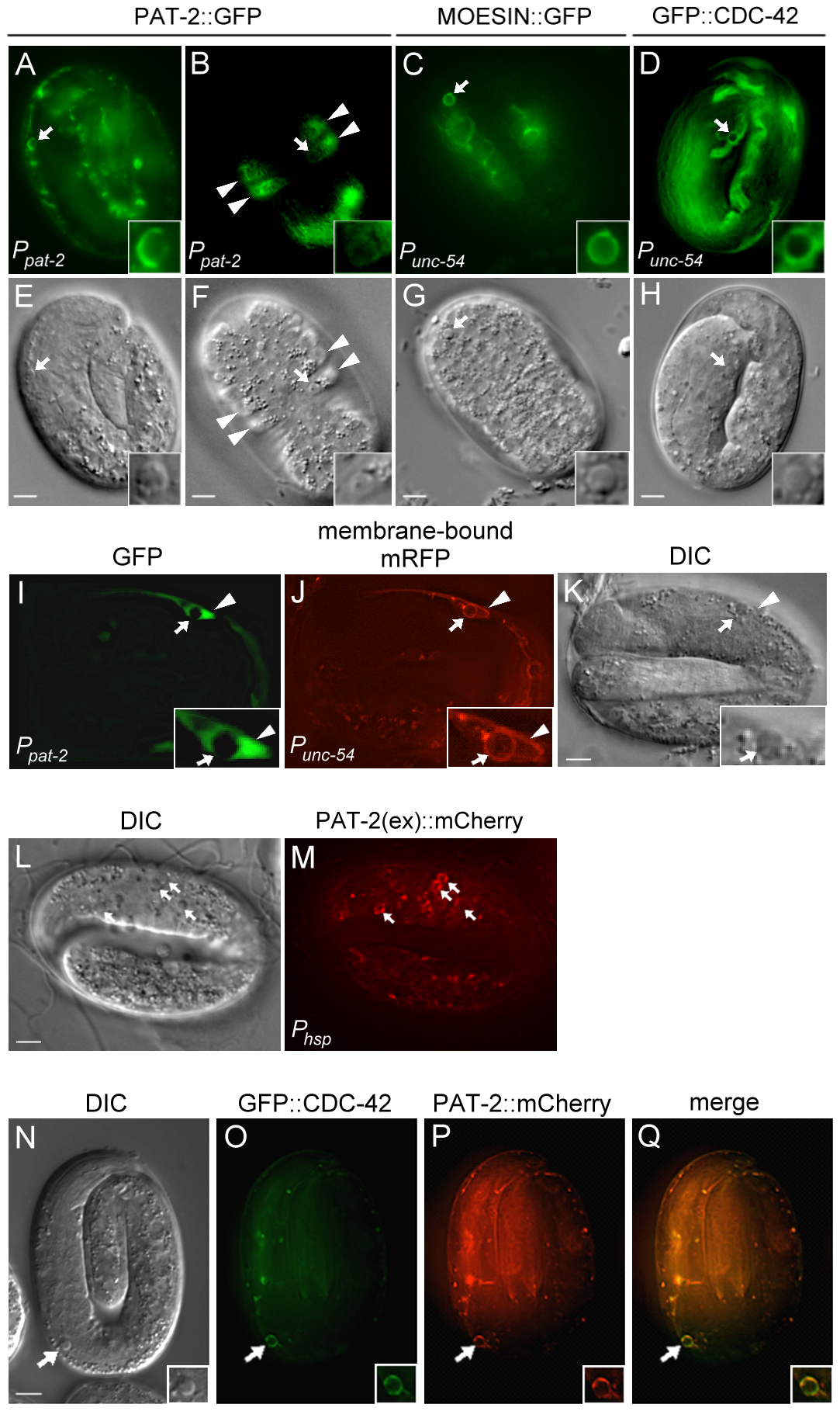 PAT-2 is strongly expressed in muscle cells and clusters around apoptotic cells.