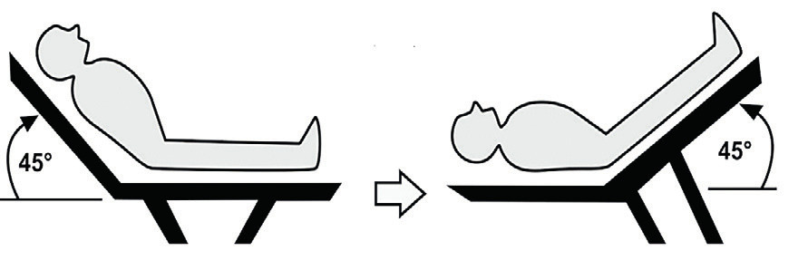 Passive leg-raising maneuver