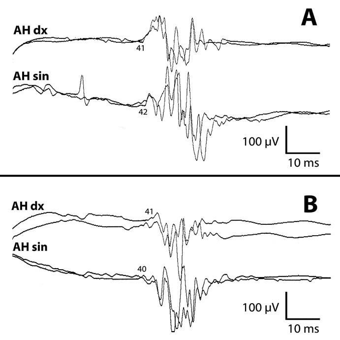 Symetrické latence MEPs m. abductor hallucis oboustranně (stimulace Cz bikónickou cívkou) před operací (a) i tři měsíce po operaci (b). Prahová intenzita MEPs vždy 65 %.