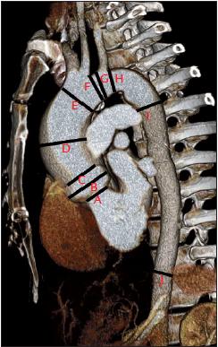 Trojrozměrná rekonstrukce CT angiografi e aorty u nemocného s bikuspidální aortální chlopní. Kromě měření diametrů v oblasti ascendentní aorty (obr. 4) je změřen diametr aortálního oblouku před a za odstupem brachiocefalického trunku (linie E, F), před a za odstupem levé poklíčkové artérie (G, H), diametr začátku descendentní aorty (I) a descen dentní aorty v oblasti bránice (J).