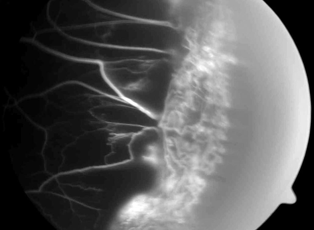 Obr. 10. Periferní fibroproliferace u srpkovité anémie imitující periferní granulom u 44leté pacientky afroamerického původu. b) Tento útvar byl diagnostikován jako fibroproliferace při vyšetření fluorescenční angiografií, která odhalila nonperfuze v okolí a cévní struktury tvořící tento útvar