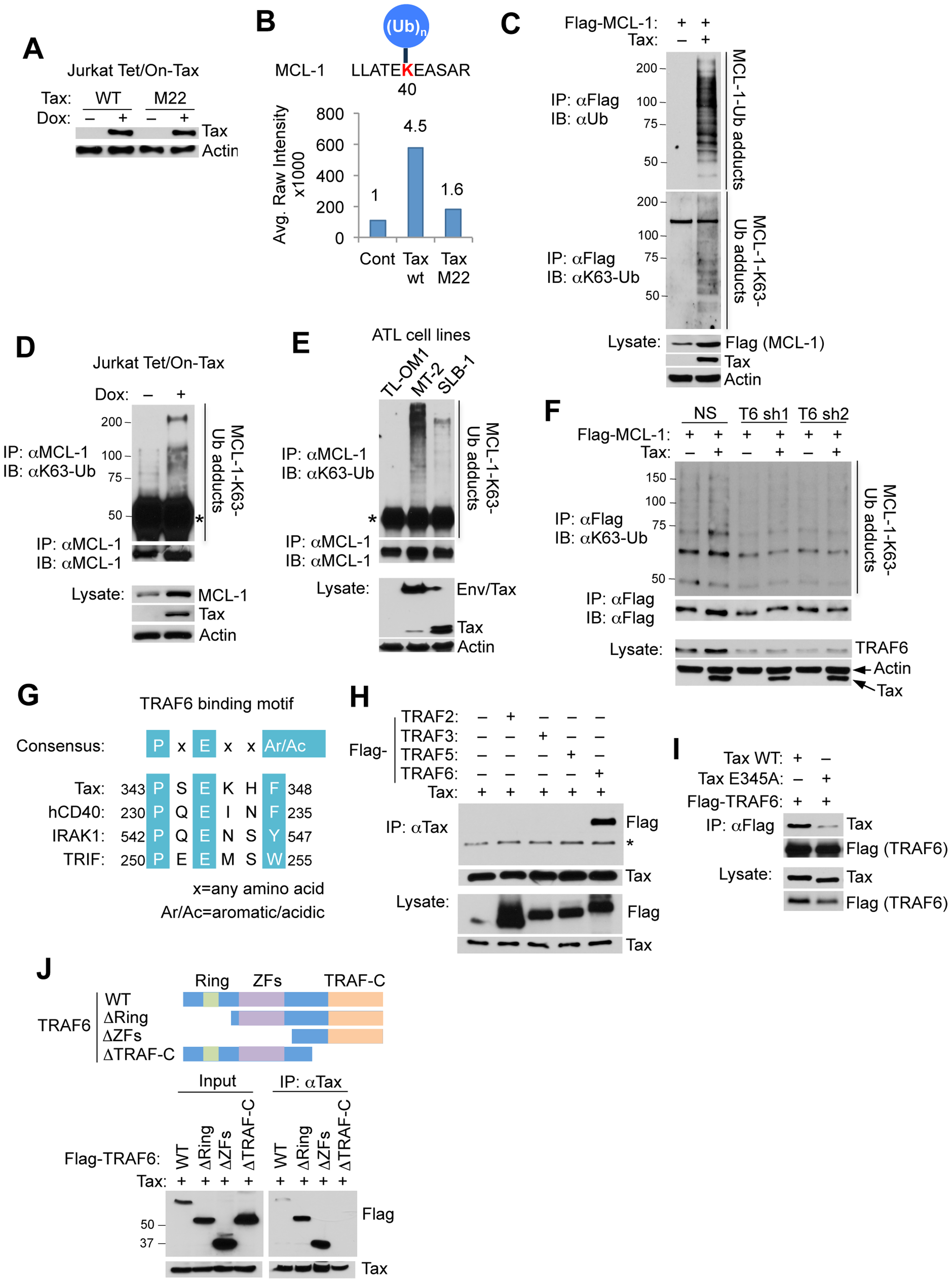 Tax promotes TRAF6-dependent MCL-1 ubiquitination.
