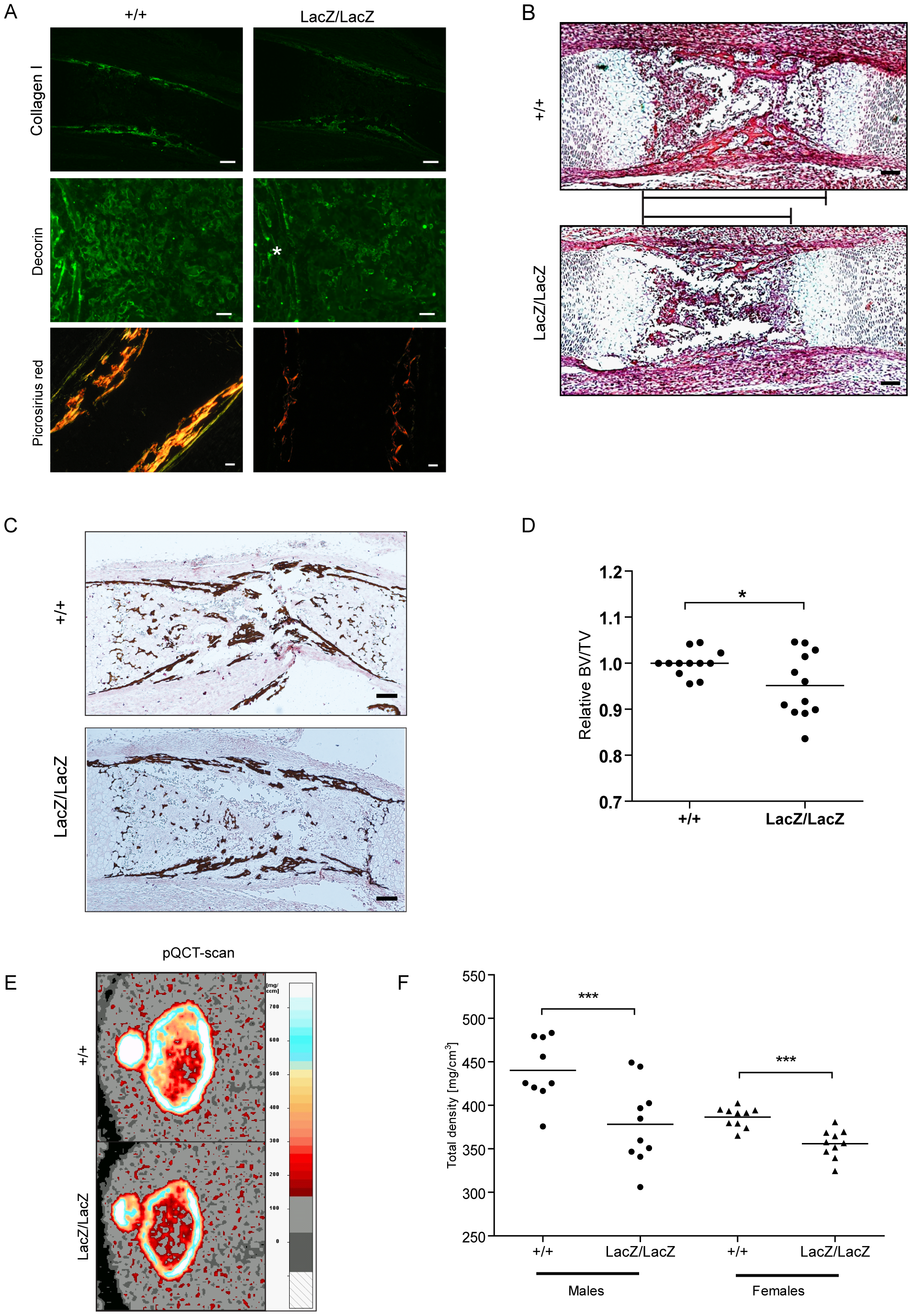 Prdm5 loss results in decreased Collagen I and Decorin levels and leads to reduced bone formation <i>in vivo</i>.