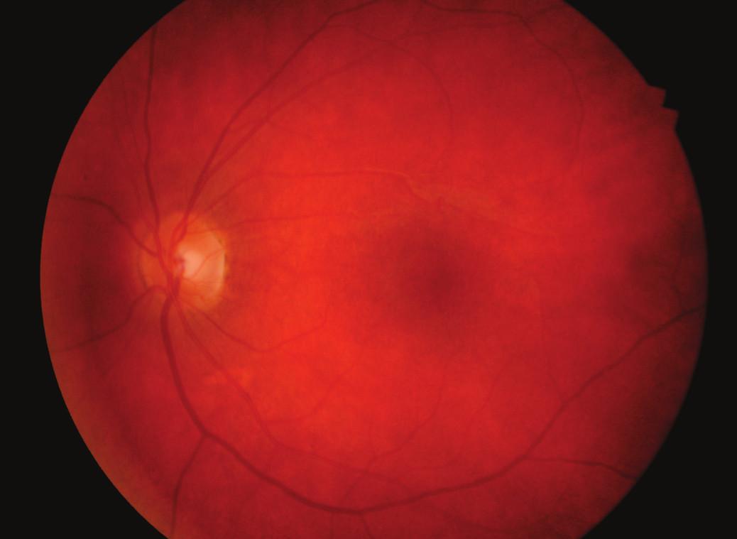 Normální nález v makule levého oka 2 měsíce po léčbě