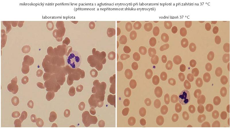 Krev našeho pacienta rozestřená na podložním sklíčku při mikroskopickém hodnocení. Pokud se krev rozestře bez předehřátí, je zřetelný fenomén aglutinace. Pokud se vzorek krve předehřeje v teplé lázni před provedením roztěru, dojde k uvolnění aglutininů z vazby na erytrocyty a je možné získat normální krevní nátěr.