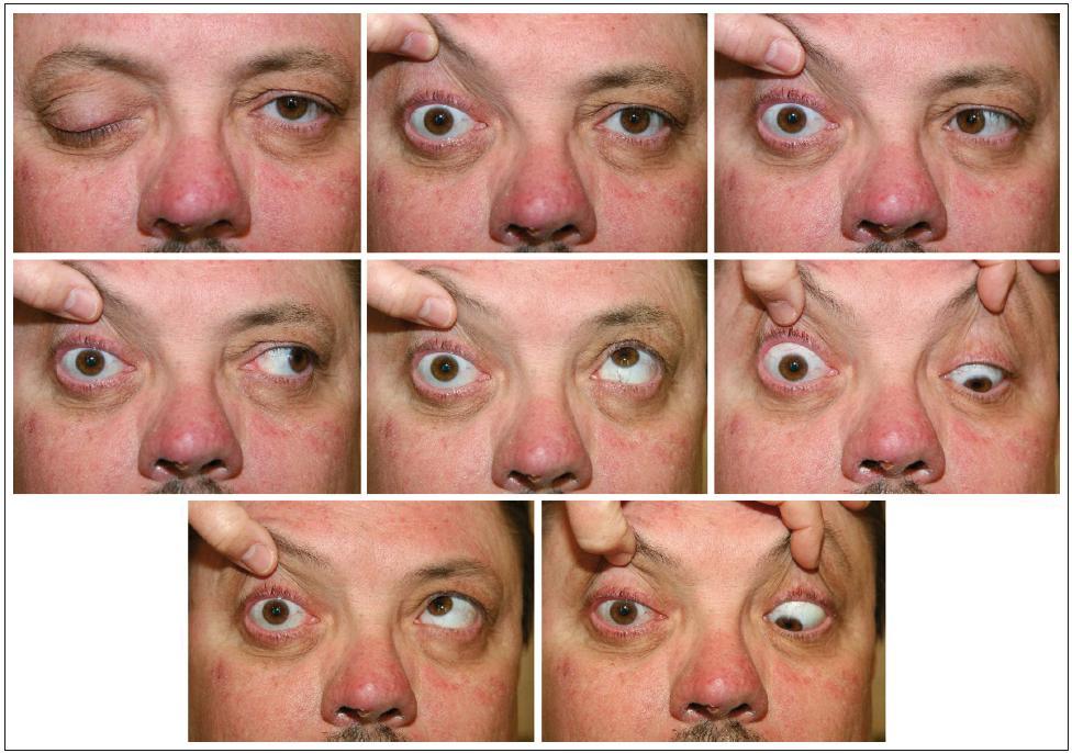 Obraz totální oftalmoplegie a lehké protruze vpravo jeden týden po resekci tumoru.