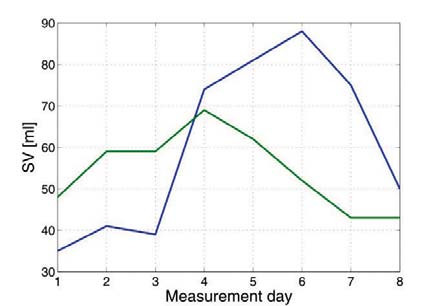 Fig. 8: Stroke volume estimated on echocardiography (green) and on impedance cardiography (blue).