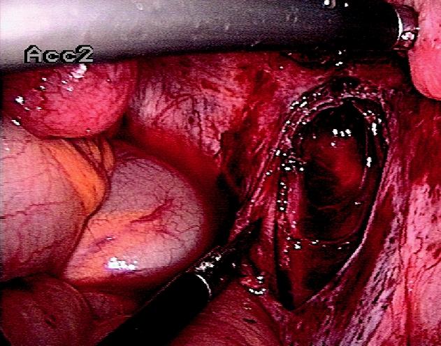 Peritoneální forma endometriózy - stav po excizi ložiska