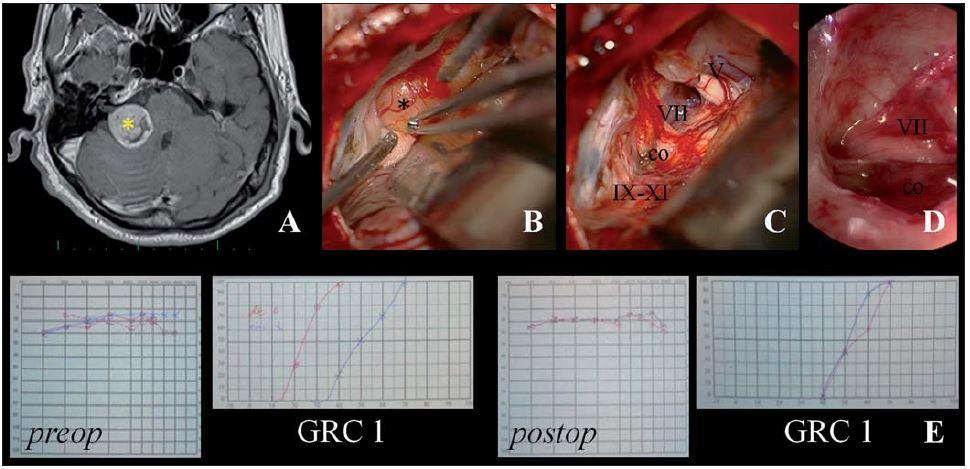 Ilustrační foto – endoskopicky asistovaná mikrochirurgická exstirpace VS retrosigmoidním-transmeatálním přístupem s uchováním intaktního n. VII a užitečného sluchu.