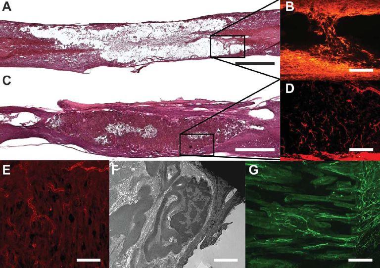 Biomateriály v míšní lézi.
