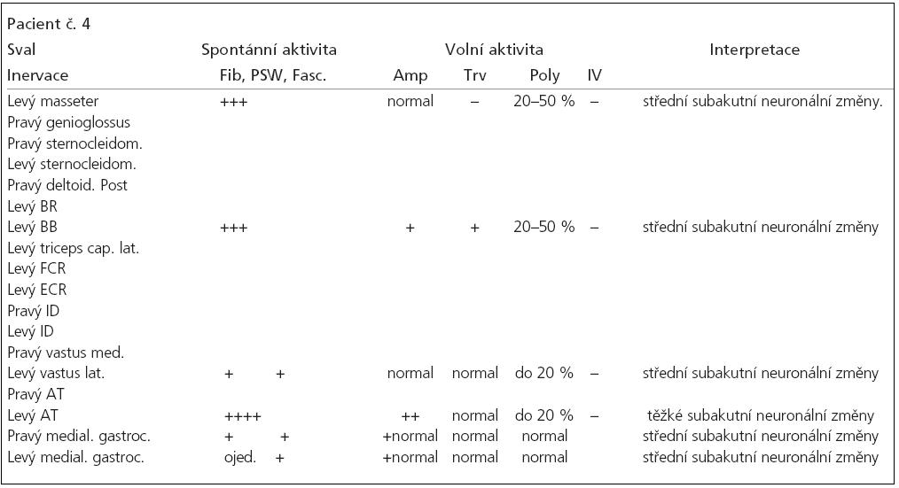 Tab. 2d. Výsledky vyšetření jehlovou EMG.