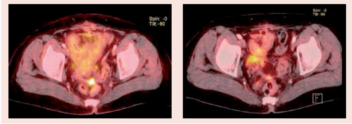 PET/CT vyšetření před zahájením léčby (2.1) a po 3 měsících (2.2) – oblast malé pánve