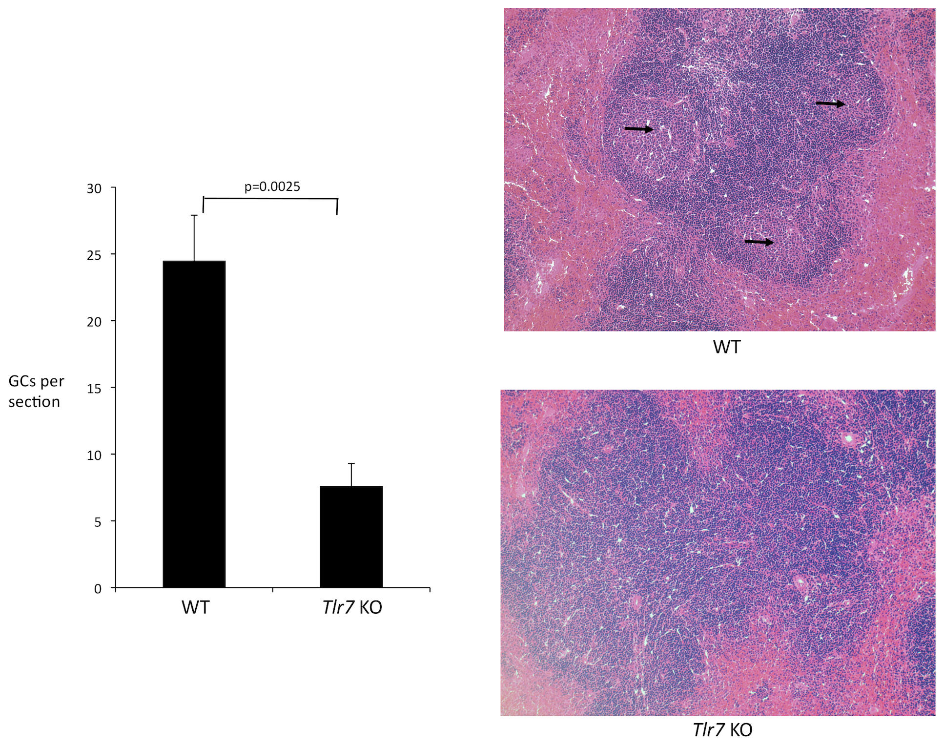 Histological analysis of germinal center formation during FV infection.