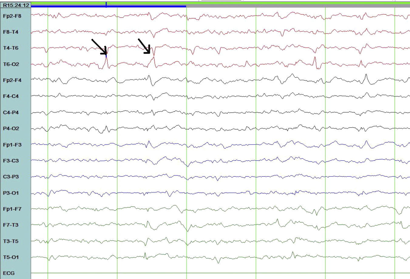 Electroencephalogram Showing Repetitive Focal Spikes or Sharps Less Than Three per Second