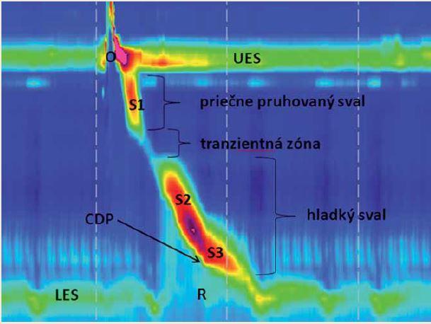 Normálna primárna peristaltika pažeráka. Proximálnu zónu vyššieho tlaku predstavuje horný pažerákový zvierač (UES), s krátkym poklesom tlaku počas hltu (O). Nasleduje peristaltika priečne pruhovaného svalstva, tzv. segment S1. Tranzientná zóna (TZ) – oblasť nižšieho tlaku, kde prechádza priečne pruhované svalstvo pažeráka do hladkého svalstva. Segmenty pažeráka S2 a S3 sú dané kontrakciou hladkého svalstva. Distálna zóna vyššieho tlaku je daná dolným pažerákovým zvieračom (lower esophageal sphincter – LES). Po hlte nasleduje relaxácia dolného pažerákového zvierača (R). Kontraktilný deceleračný bod (contractile deceleration point – CDP) je bod na 30 mmHg izobarickej krivke, kde dochádza k významnému spomaleniu pažerákovej peristaltiky a zmene kontraktilnej aktivity. Fig. 4. Normal esophageal peristalsis. The proximal high pressure zone is defined by the upper esophageal sphincter (UES) with a short pressure drop during swallowing (O). The striated muscles peristalsis follows, i.e. segment S1. The transient zone (TZ) – lower pressure zone, zone of transition of the striated muscles into smooth muscles. Esophageal segments S2 and S3 are defined by the smooth muscles contraction. A distal high pressure zone defines an esophageal-gastric junction (EGJ). A swallow is followed by relaxation of the lower esophageal sphincter (R). A contractile deceleration point (CDP) is a point at 30 mmHg of isobaric contour where a significant slowdown of esophageal peristalsis occurs and the character of contractile activity is changed.