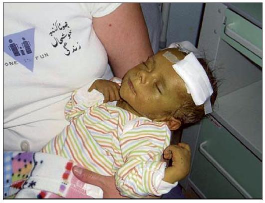 Dětský pacient před transplantací jater
